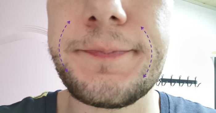 Man with lips extended to show vertical lines on either side
